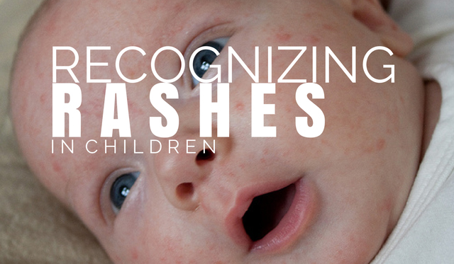 Recognizing Different Rashes in Children